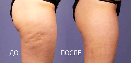 До и после процедуры Indiba